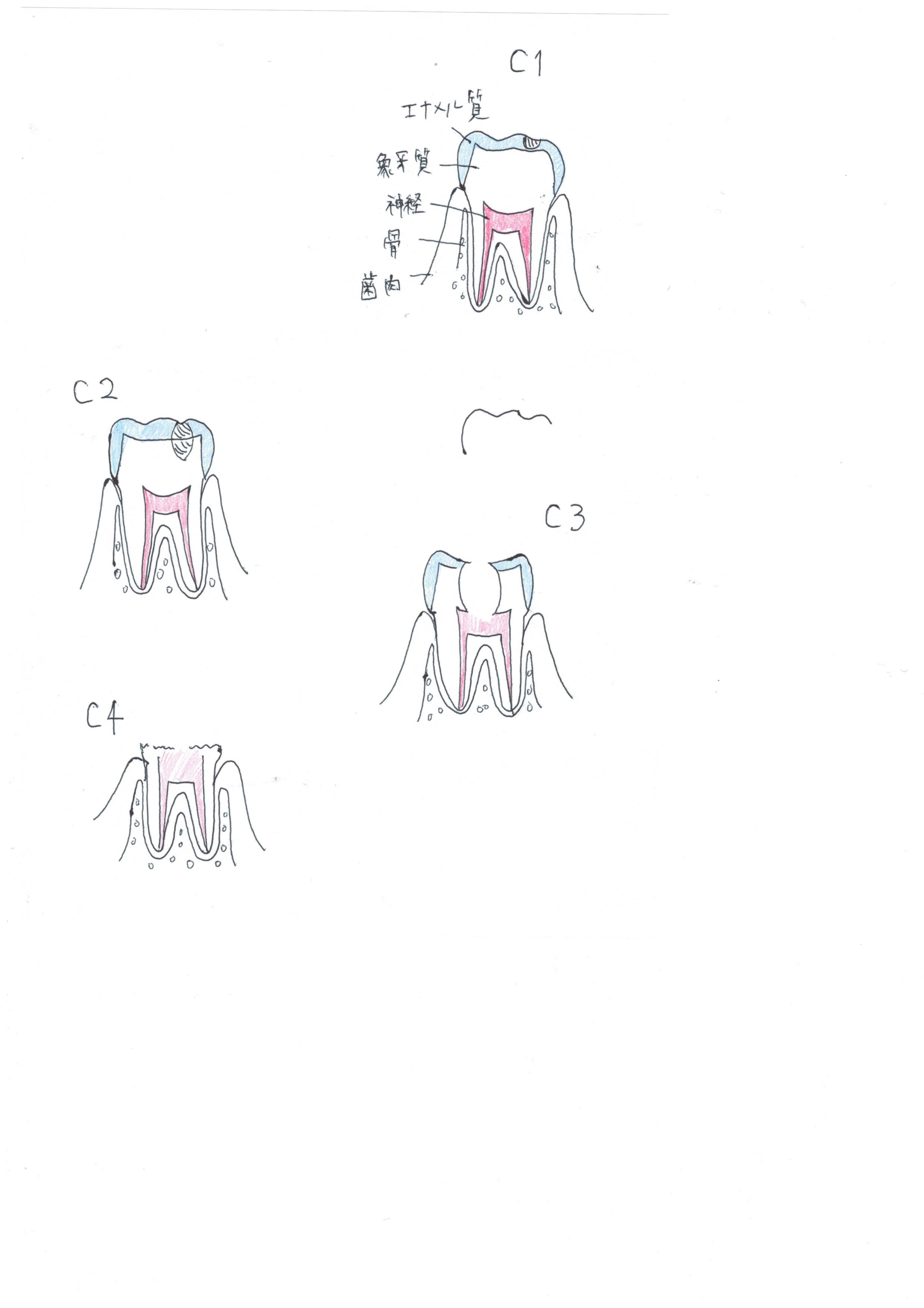 C1C2C3C4の図