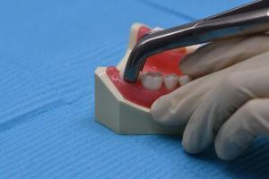 歯を抜く抜歯