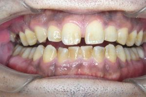クリーニング前の歯